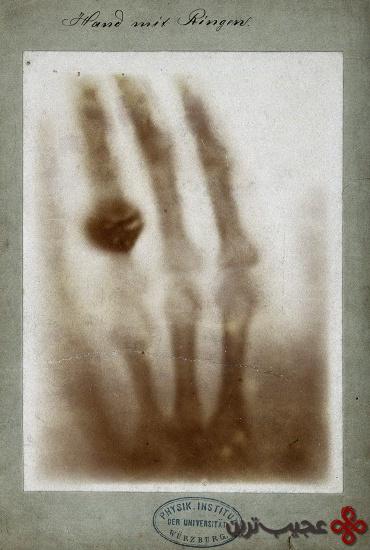 اشعه-ایکس