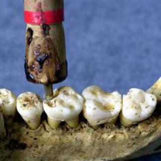 عکس کاور مته دندانپزشکی
