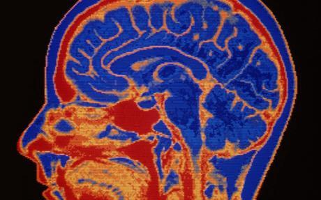 عکس کاور مغز