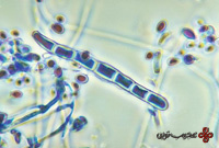 trichophyton