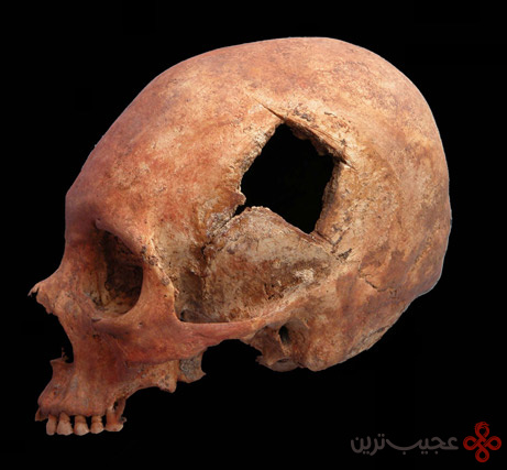 جراحان جمجمه قوم اینکا