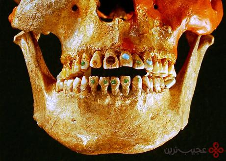 دندان جواهرکاری شده