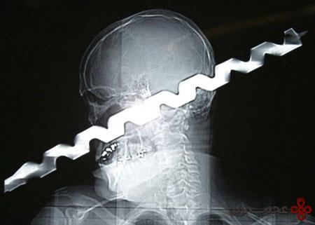 رادیولوژی (1)