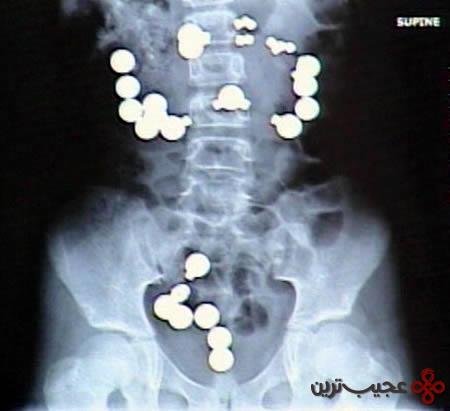 رادیولوژی (10)
