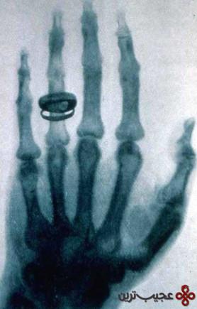 رادیولوژی (17)