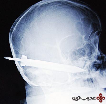رادیولوژی (20)