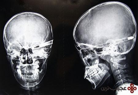 رادیولوژی (21)