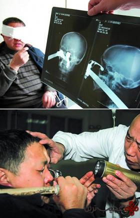 رادیولوژی (3)