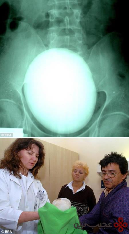 رادیولوژی (4)
