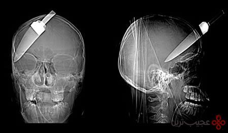 رادیولوژی (6)