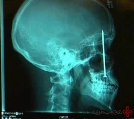 رادیولوژی (8)