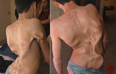 سندرم انسان سنگی (1)