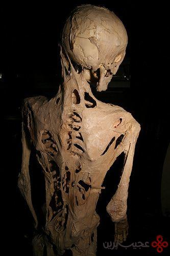سندرم انسان سنگی (2)