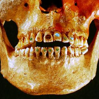 عکس کاور دندان جواهرکاری شده