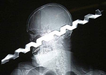 عکس کاور رادیولوژی (1)