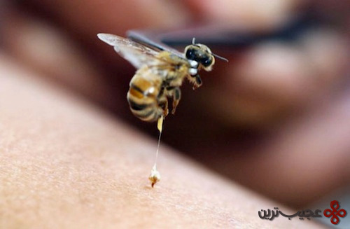 bee venom arthritis treatment
