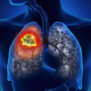 ۵ سرطانهای ریه، نای و نایژه (۱٫۶ میلیون کشته؛ ۲٫۹ درصد از کل مرگ و میر جهان)