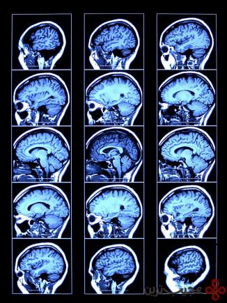 مغزهای غیر عادی