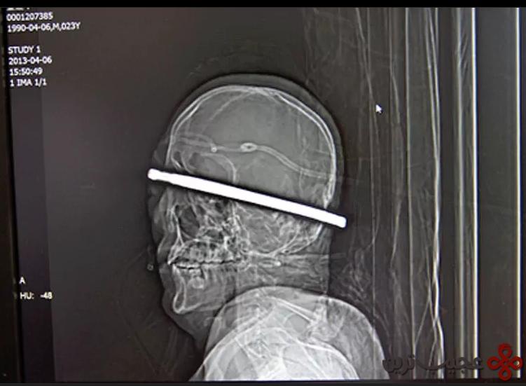 میله فولادی ضخیم در سر